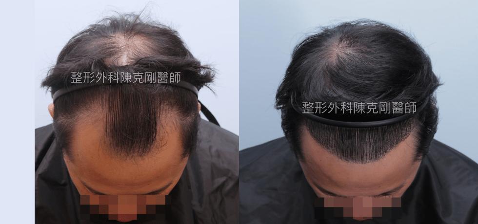 植髮專家陳克剛醫師 高雄巨量植髮案例分享 植髮手術後一年五個月低頭髮線比較