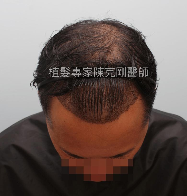植髮專家陳克剛醫師 高雄巨量植髮案例分享 植髮手術後立即 低頭髮線