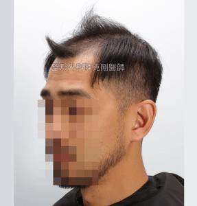 高雄植髮專家陳克剛醫師 FUE巨量植髮案例分享 植髮手術前左側