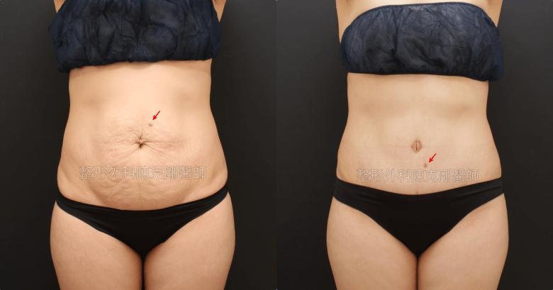 腹部拉皮手術治療產後鬆弛小腹手術後五個月正面比較