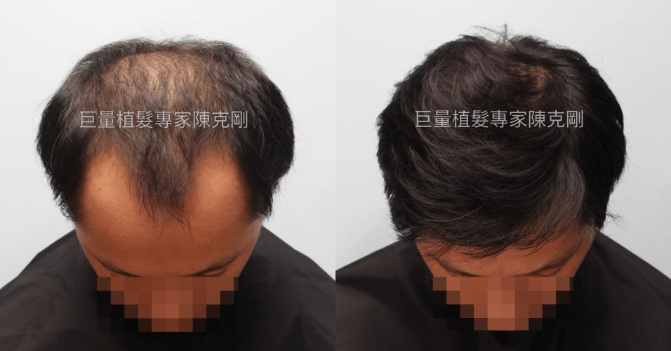 高雄巨量植髮經驗分享