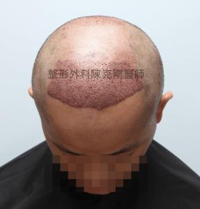 陳克剛醫師桃園巨量植髮案例分享植髮手術中低頭