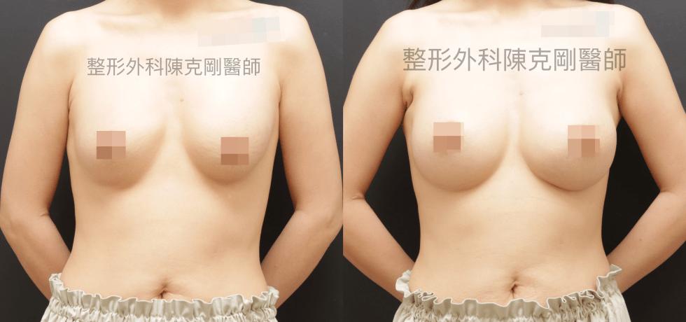 隆乳失敗內視鏡腋下重修魔滴隆乳手術後三個月正面比較