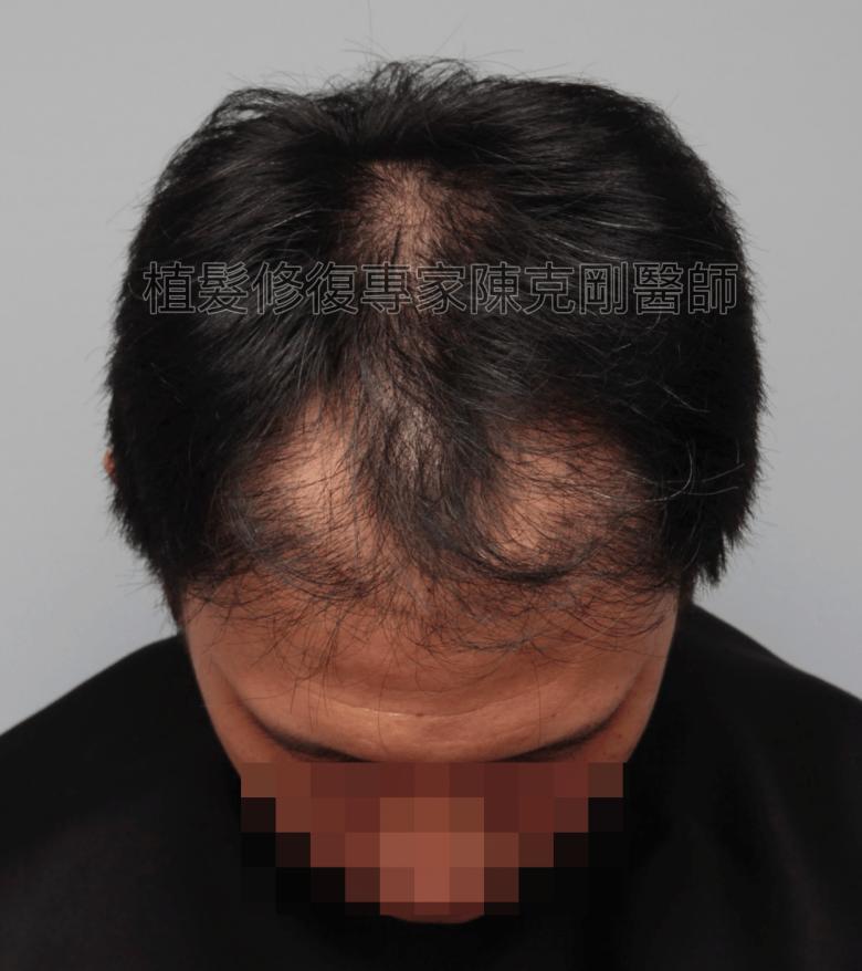 割頭皮植髮失敗 陳克剛醫師FUE巨量植髮重修案例分享 植髮手術前低頭