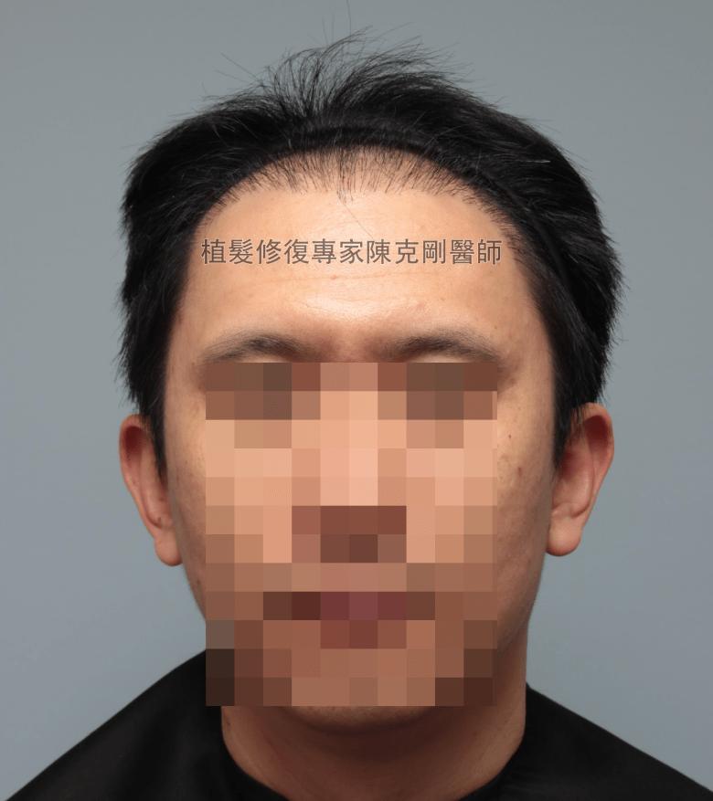 割頭皮植髮失敗 陳克剛醫師FUE巨量植髮重修案例分享 植髮手術前正面髮線