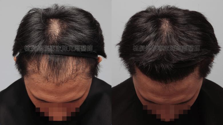 割頭皮植髮失敗 陳克剛醫師FUE巨量植髮重修案例分享 植髮手術後三個月低頭髮線比較