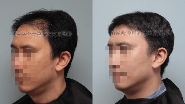 割頭皮植髮失敗 陳克剛醫師FUE巨量植髮重修案例分享 植髮手術後三個月左側比較