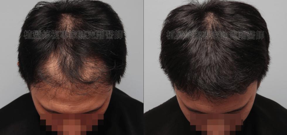 割頭皮植髮失敗 陳克剛醫師FUE巨量植髮重修案例分享 植髮手術後六個月低頭比較