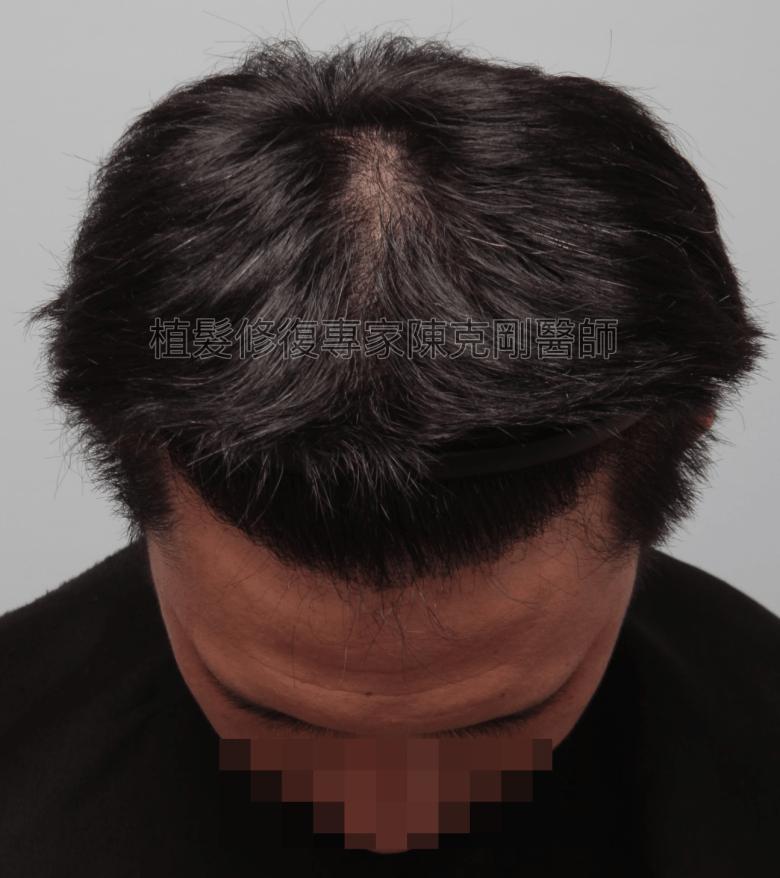 割頭皮植髮失敗 陳克剛醫師FUE巨量植髮重修案例分享 植髮手術後六個月低頭髮線