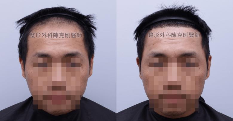 台中陳克剛醫師前額植髮案例分享 植髮手術後半年正面髮線比較