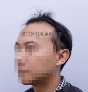 陳克剛醫師台中巨量植髮治療頭頂稀疏案例分享 植髮手術前左側髮線