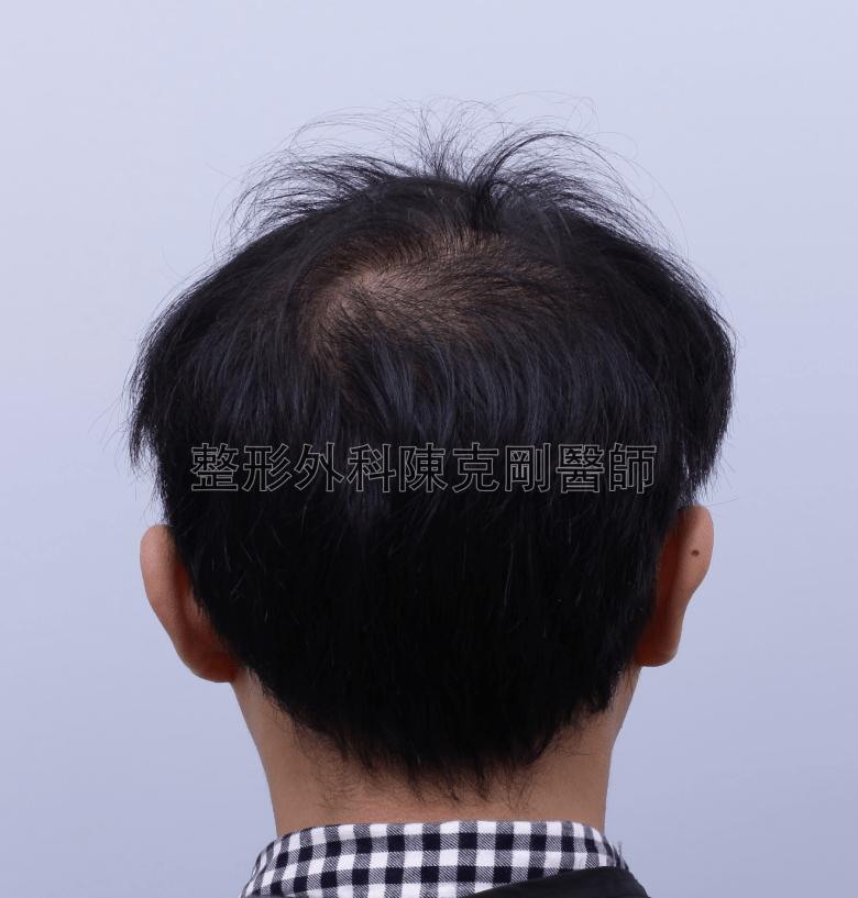 陳克剛醫師台中巨量植髮治療頭頂稀疏案例分享 植髮手術前後腦