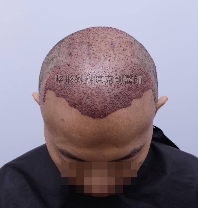陳克剛醫師台中巨量植髮治療頭頂稀疏案例分享 植髮手術後低頭