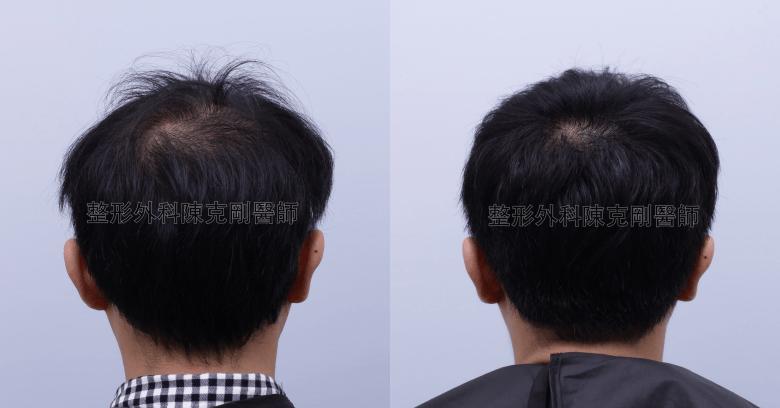 陳克剛醫師台中巨量植髮治療頭頂稀疏案例分享 植髮手術後半年後腦比較