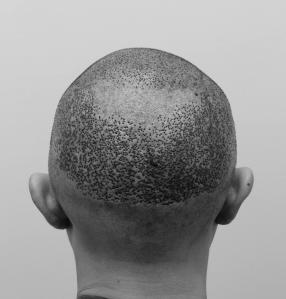 陳克剛醫師台中巨量植髮治療頭頂稀疏案例分享 植髮手術後後腦
