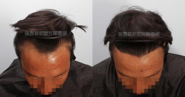 陳克剛醫師植髮分層剃髮治療M型禿髮線後退 植髮手術後半年低頭比較