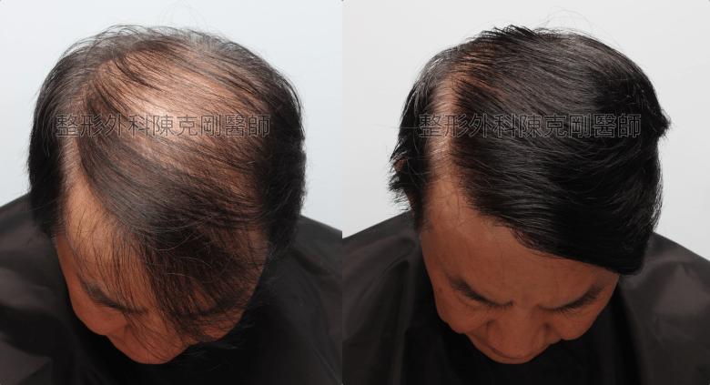 陳克剛醫師頭頂稀疏巨量植髮案例 巨量植髮手術後一年低頭比較