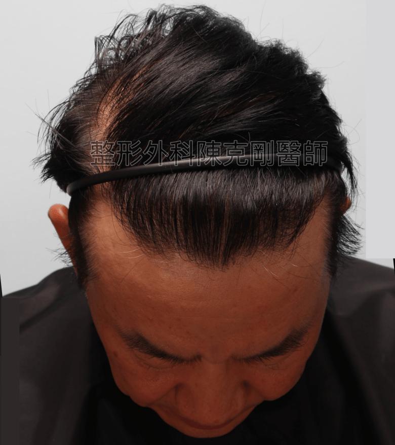 陳克剛醫師頭頂稀疏巨量植髮案例 FUE巨量植髮手術後一年低頭髮線
