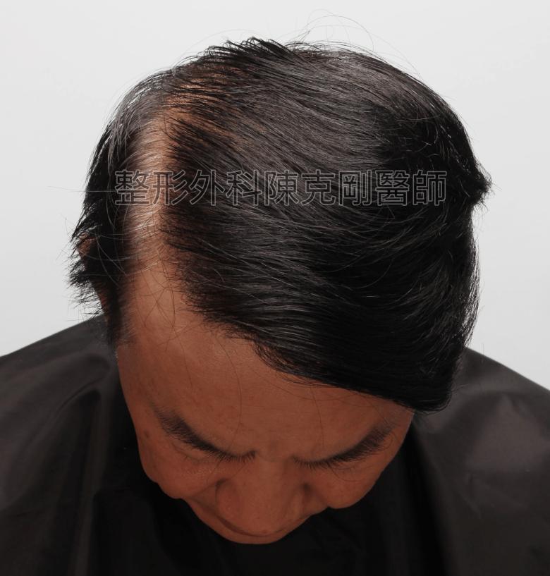 陳克剛醫師頭頂稀疏巨量植髮案例 FUE巨量植髮手術後一年低頭