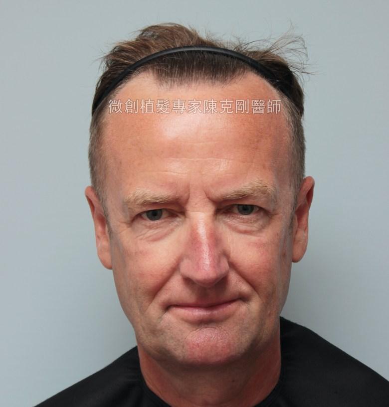 外國人植髮 微創植髮專家陳克剛醫師案例分享 植髮手術前正面髮線