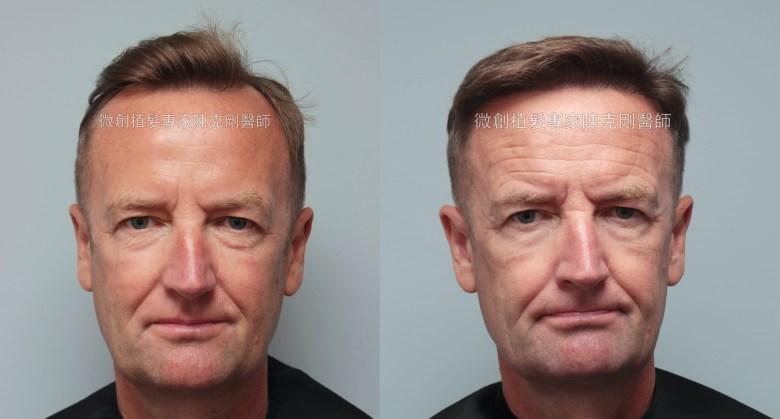 外國人植髮 微創植髮專家陳克剛醫師案例分享 植髮手術後七個月正面比較
