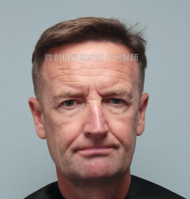 外國人植髮 微創植髮專家陳克剛醫師案例分享 植髮手術後七個月正面