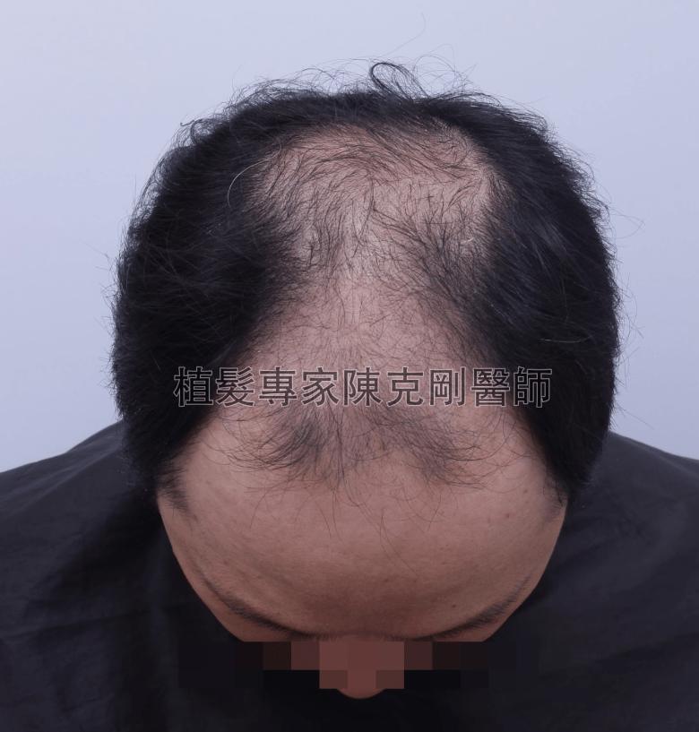 陳克剛醫師雄性禿第五期FUE巨量植髮 植髮手術前低頭