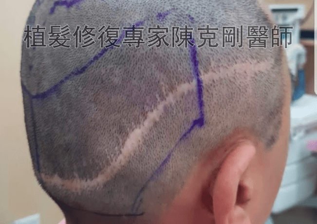 FUT割頭皮疤痕