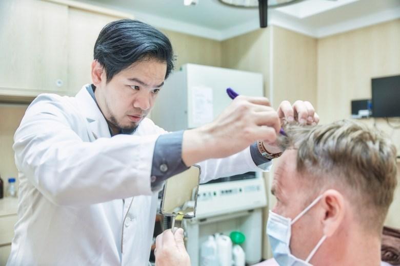 外國人植髮 微創植髮專家陳克剛醫師案例分享 植髮手術前畫線