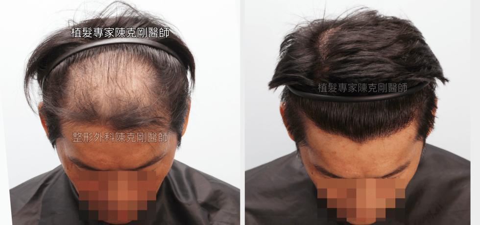 植髮取代髮片 陳克剛植髮案例分享