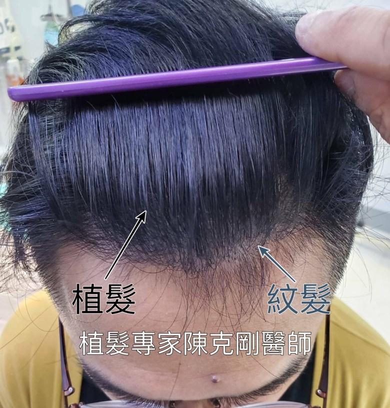 紋髮失敗後植髮