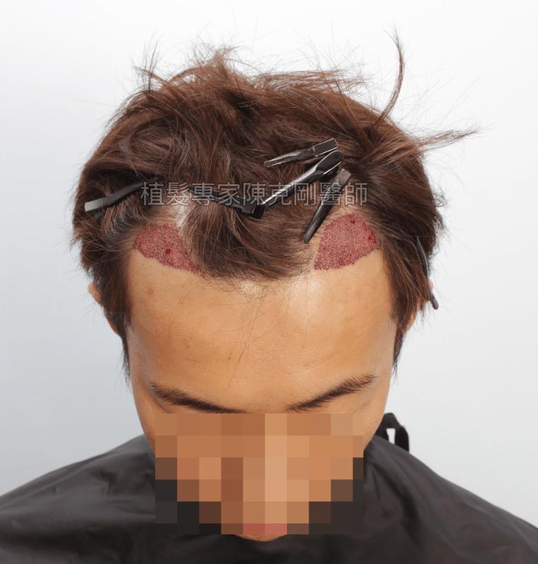 陳克剛醫師 高雄髮際線植髮案例分享 植髮手術後低頭