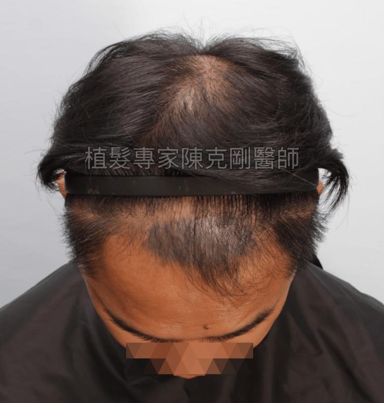 頭皮刺青魔術真髮後植髮 植髮手術前低頭