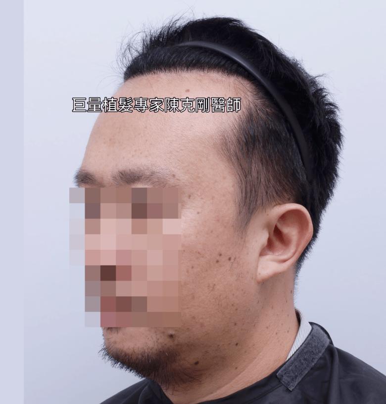 FUE微創巨量植髮專家陳克剛醫師 台中植髮案例分享