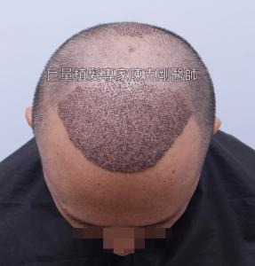 微創巨量植髮專家陳克剛醫師 台中植髮案例分享