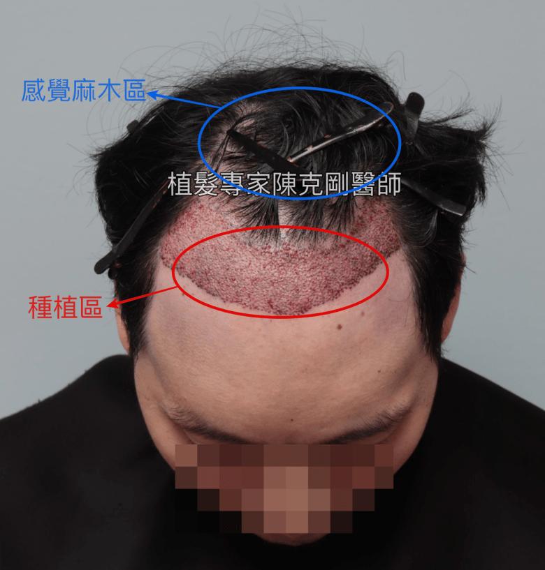 植髮後的頭頂麻木區域