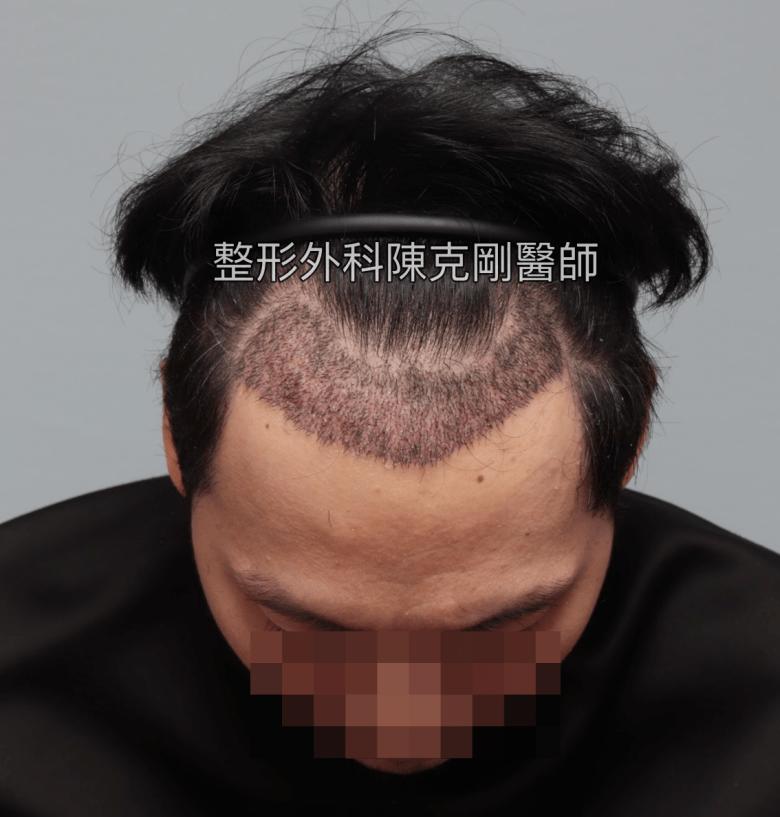 植髮生長的時間表