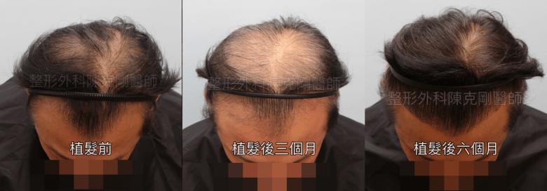 植髮後的生長過程