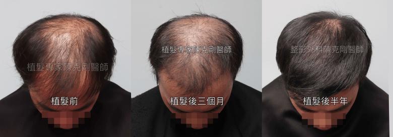 植髮後的生長期