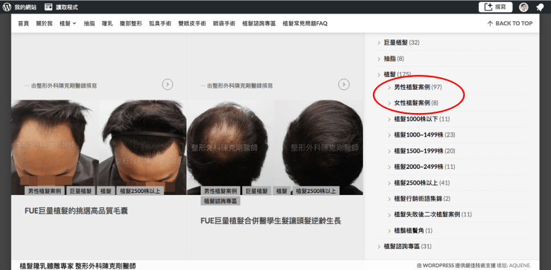 陳克剛醫師百例以上植髮案例