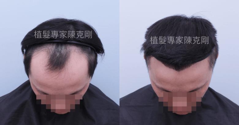 FUE植髮推薦