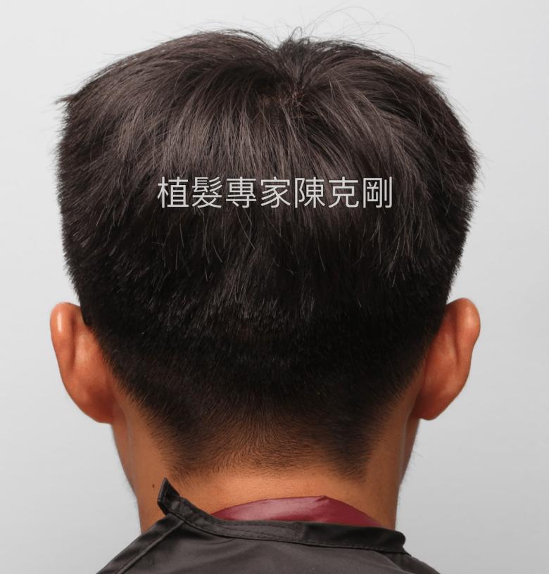 高額頭植髮