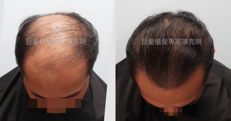米蘭植髮經驗分享