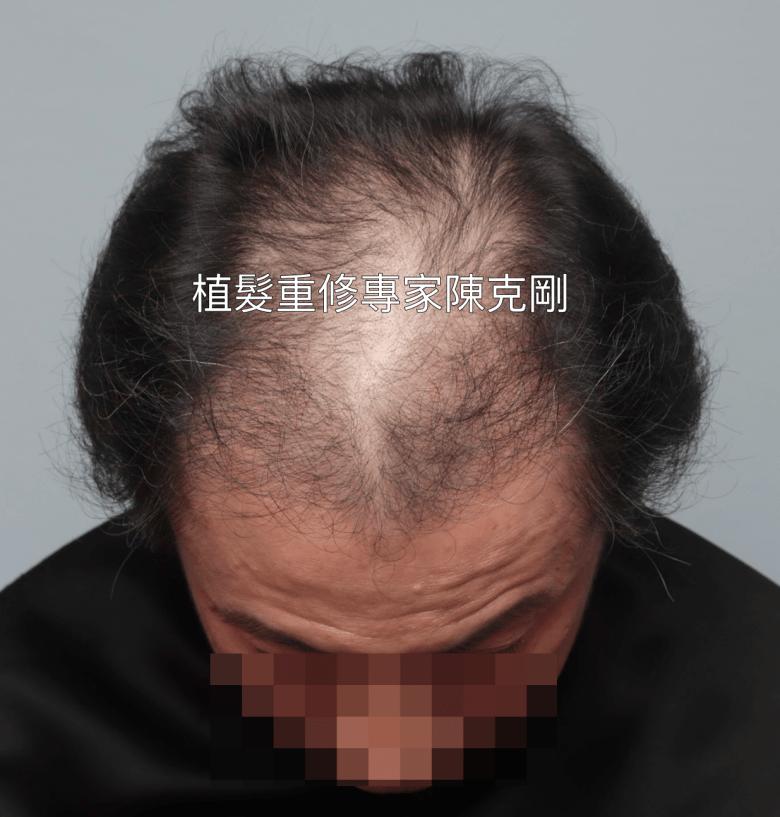 植髮失敗稀疏