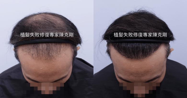 割頭皮植髮失敗