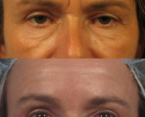 filler and botox nyc