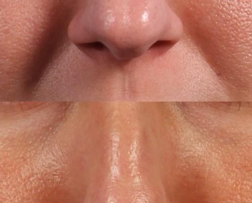 nasal fill injection ny