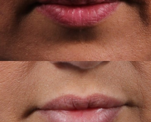 doctor lip fillers nyc