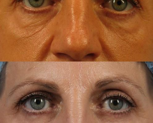 eye lift ny