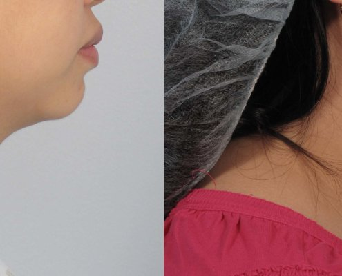 laser liposuction neck
